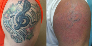 Laser Tattoo Removal Prices Results Benefits Risks Nexus