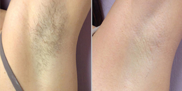Laser hair removal kuala lumpur malaysia cost reviews benefits permanent laser hair removal before after solutioingenieria Image collections